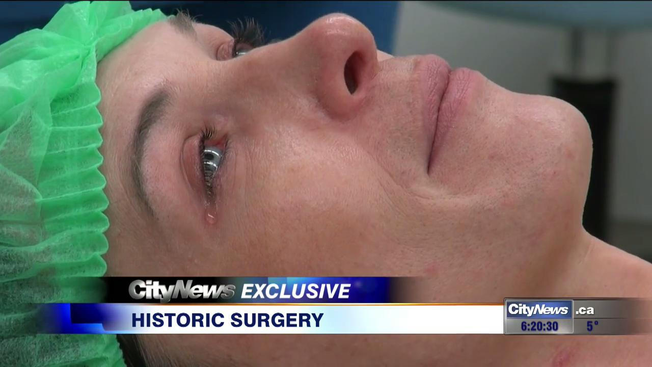 Transsexual genitalia after surgery