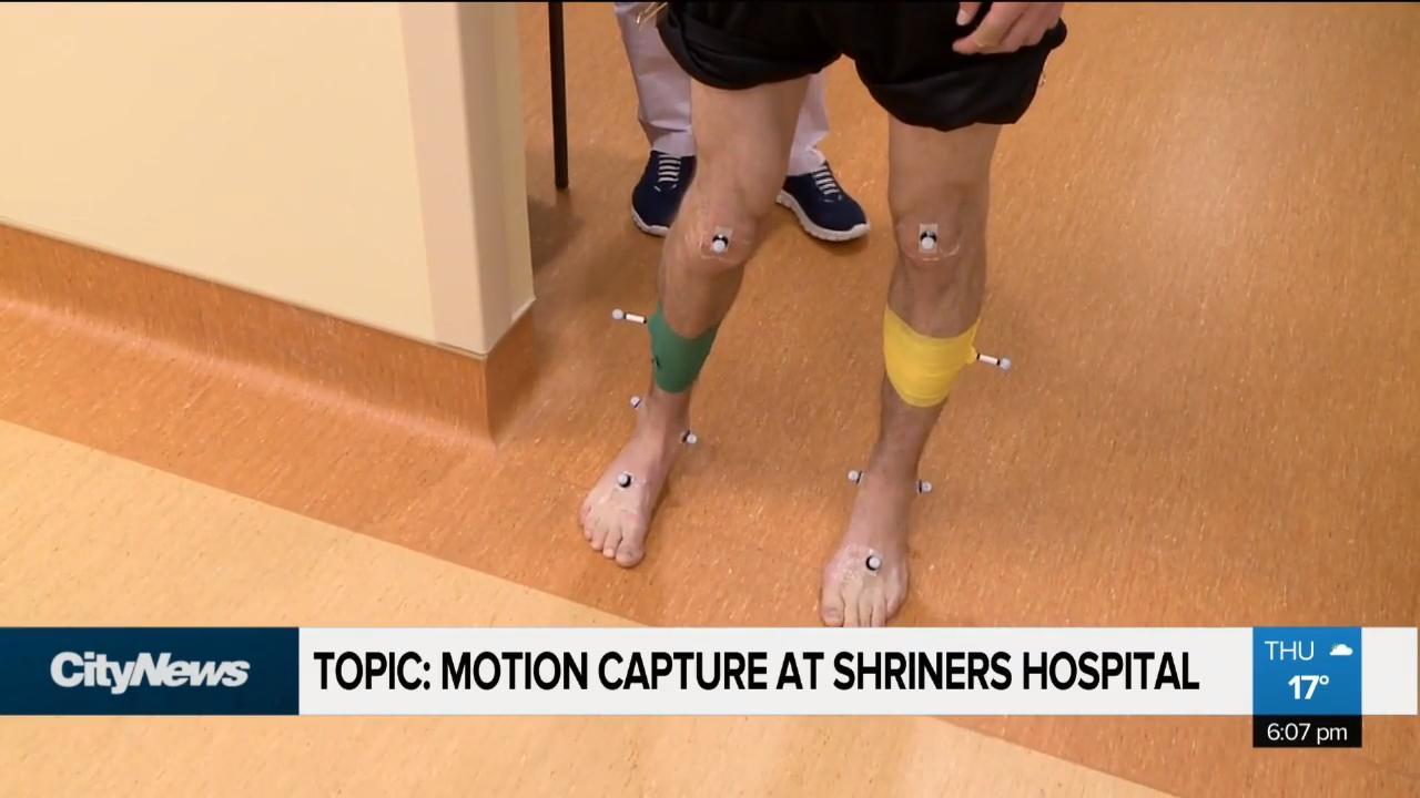 Motion capture medical marvel
