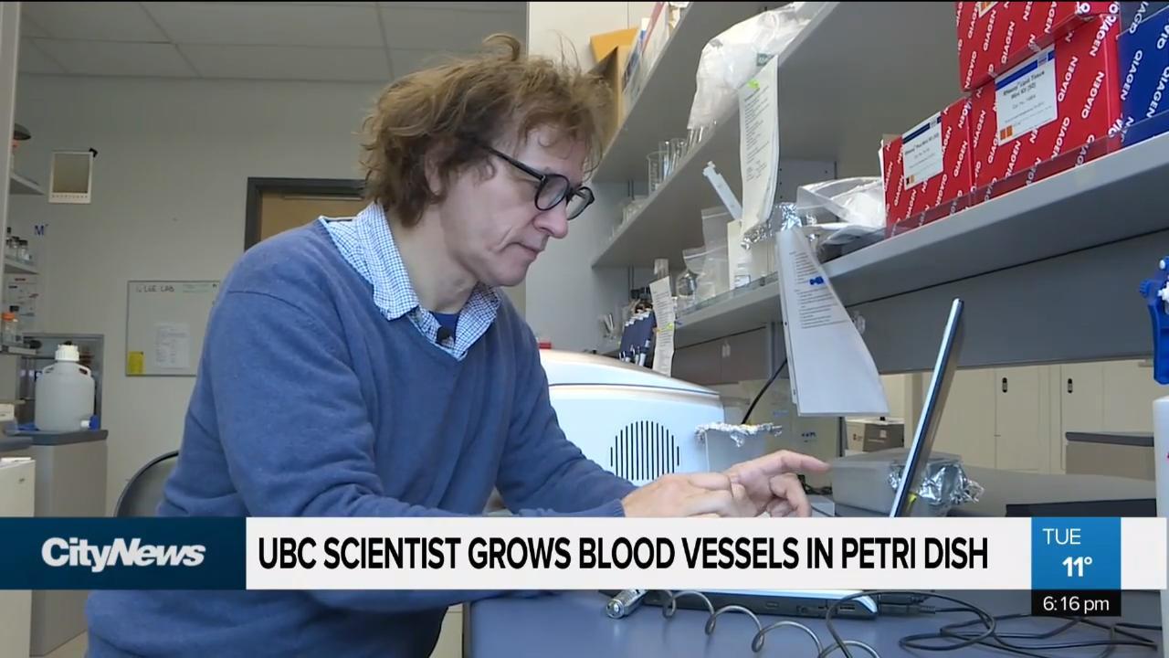 UBC scientist grows human blood vessels